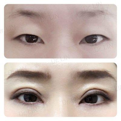 ตาสองชั้นกรีดยาว เก็บหนังตาส่วนเกิน