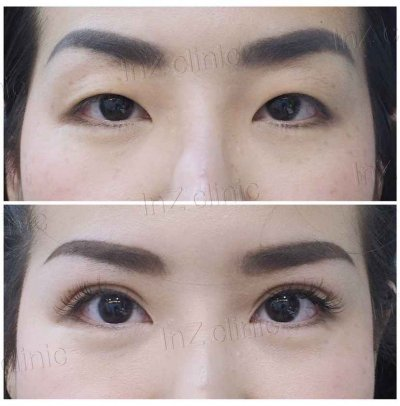 Single Eyelid Crease