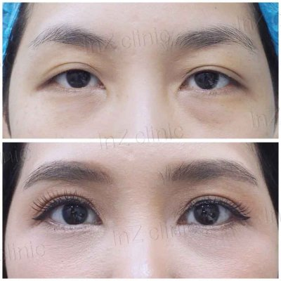 Blepharoplasty in Aging People