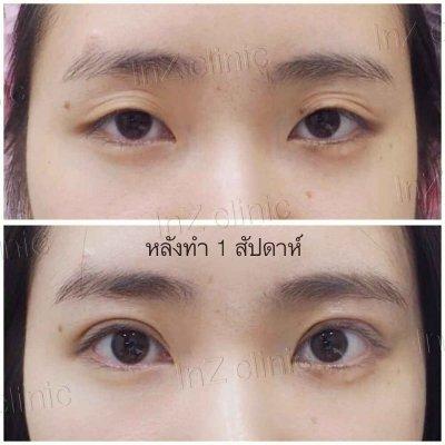 Big Eye Surgery
