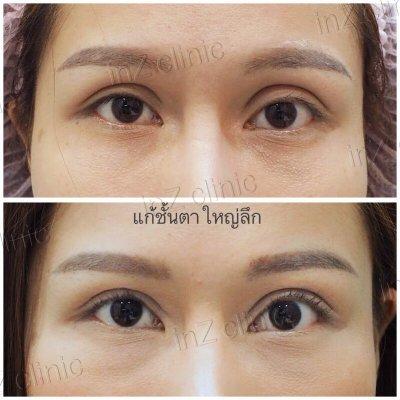 Sunken Eye Correction