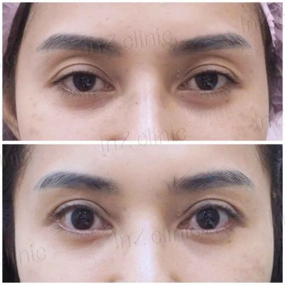 Sunken Eye Correction