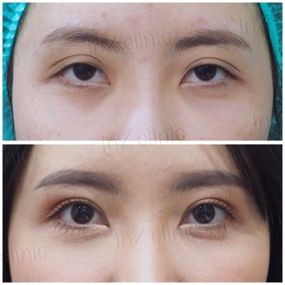 Blepharoplasty Revision