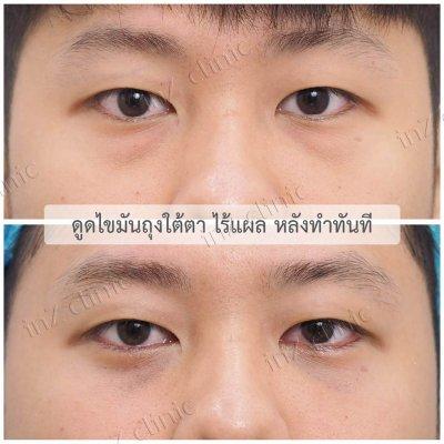 ผ่าตัดถุงใต้ตา_ทีมจักษุแพทย์_32