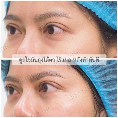 ผ่าตัดถุงใต้ตา_ทีมจักษุแพทย์_34