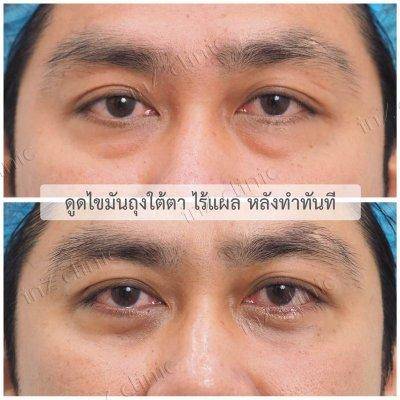 ผ่าตัดถุงใต้ตา_ทีมจักษุแพทย์_36