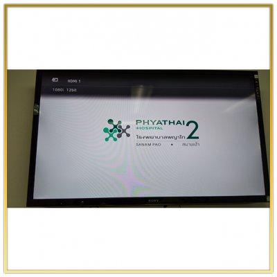 """ระบบดิจิตอลทีวี """"Phayatai Hospital 2  Snam Pao"""" ติดตั้งโดย HSTN"""