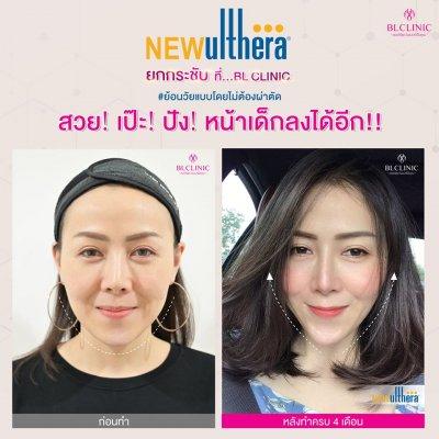 New Ulthera