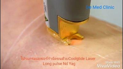 ผิวเรียบเนียน ปราศจากขนด้วย เลเซอร์กำจัดขน USA CoolGlide® CUTERA (Laser Hair Removal)