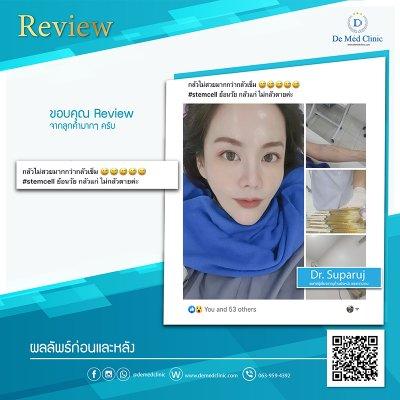 Review Picosecond Laser รักษาหลุมสิว ช่วยดูแลการเกิดแผลเป็นนูน Hypertrophic scar หรือ Keloid หลังจากการผ่าตัด