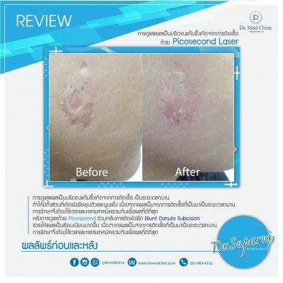 Picosecond Laser ช่วยดูแล หลุมสิว การเกิดแผลเป็นนูน Hypertrophic scar หรือ Keloid หลังจากการผ่าตัด
