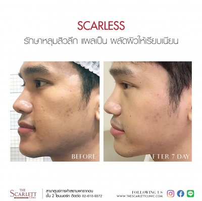 ScarsLess