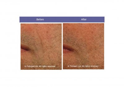 Golden Tri Fractional