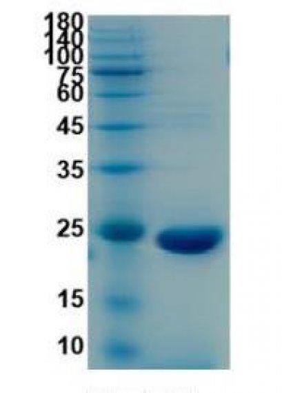Recombinant SARS-CoV-2 NSP8, 50 μg