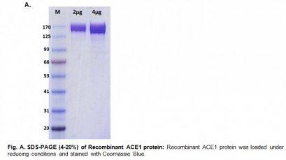 Human CellExp™ ACE1, Human Recombinant