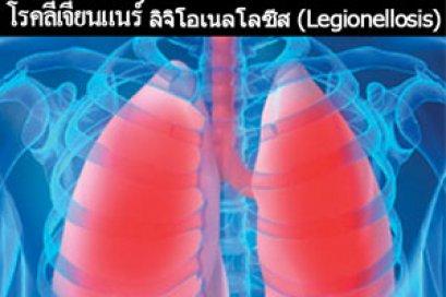 โรคลีเจียนแนร์ ลิจิโอเนลโลซีส (Legionellosis)