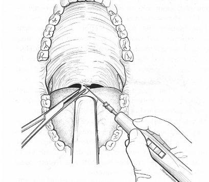 การผ่าตัดตกแต่งลิ้นไก่และเพดานอ่อนเฉพาะที่ด้วยเครื่องจี้ไฟฟ้าหรือ คลื่นความถี่วิทยุ  (Uvulopalatoplasty by Electrocautery or Radiofrequency; CAUP or RAUP)