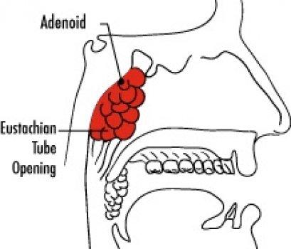 การผ่าตัดต่อมทอนซิล และ/หรือ ต่อมอะดีนอยด์  (Tonsillectomy / Adenoidectomy)