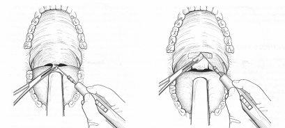 การผ่าตัดตกแต่งลิ้นไก่และเพดานอ่อน แบบประยุกต์ เพื่อรักษานอนกรน
