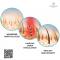 HairMax LaserBand 41 – ComfortFlex แบบที่ผมคาดผม ***พิเศษเฉพาะที่ DeMed Clinic เท่านั้น***